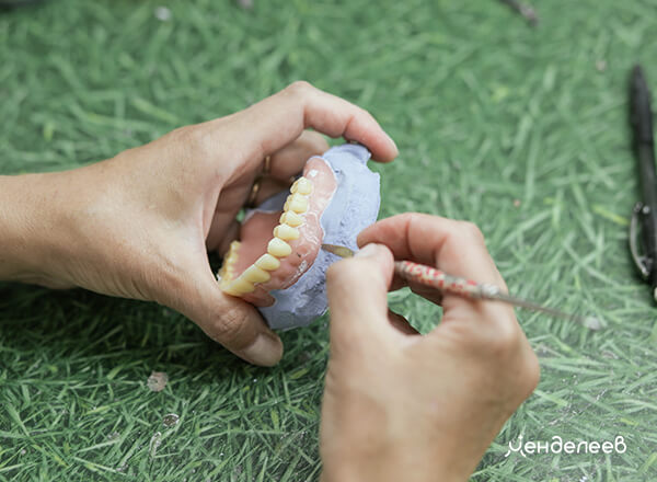 Изготовление протезов в зуботехнической лаборатории «Менделеев»
