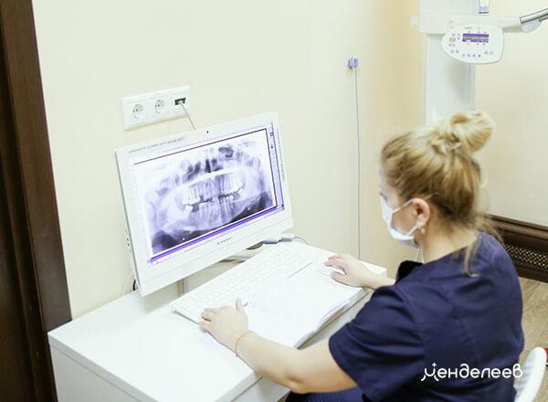 Рентгенологический контроль