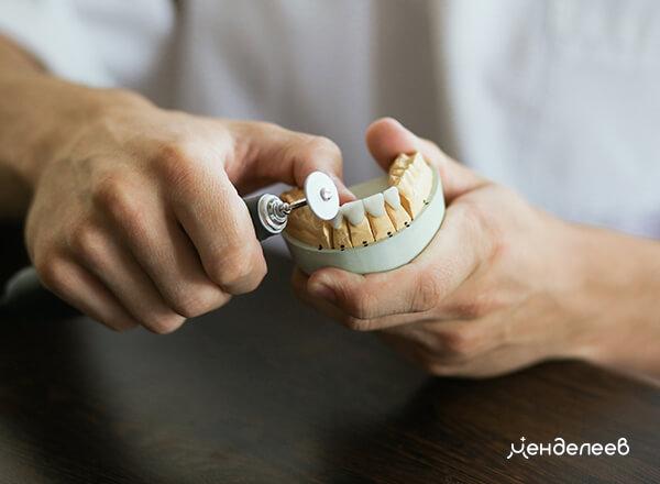 Изготовление коронок в зуботехнической лаборатории «Менделеев»